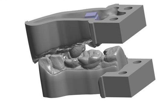 齿科3D打印